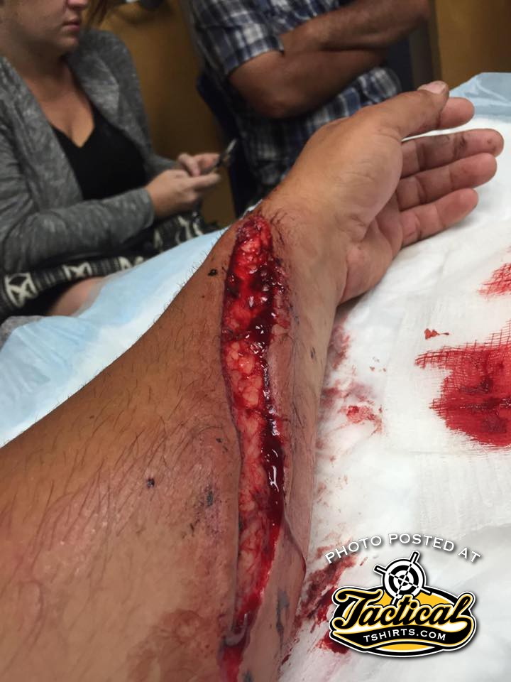 Man's Arm Injured by Wild Pig in US.